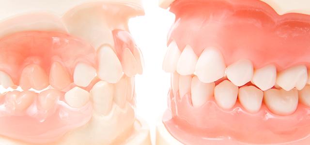 当院の入れ歯