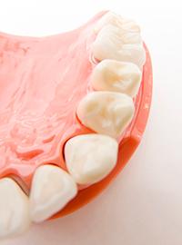 削る範囲は最小限に、樹脂で埋めて治療します